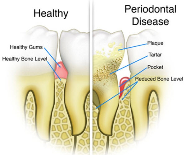 dental problems and treatment dental services markham